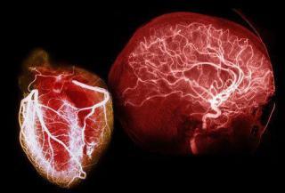 heart+n+brain.jpg